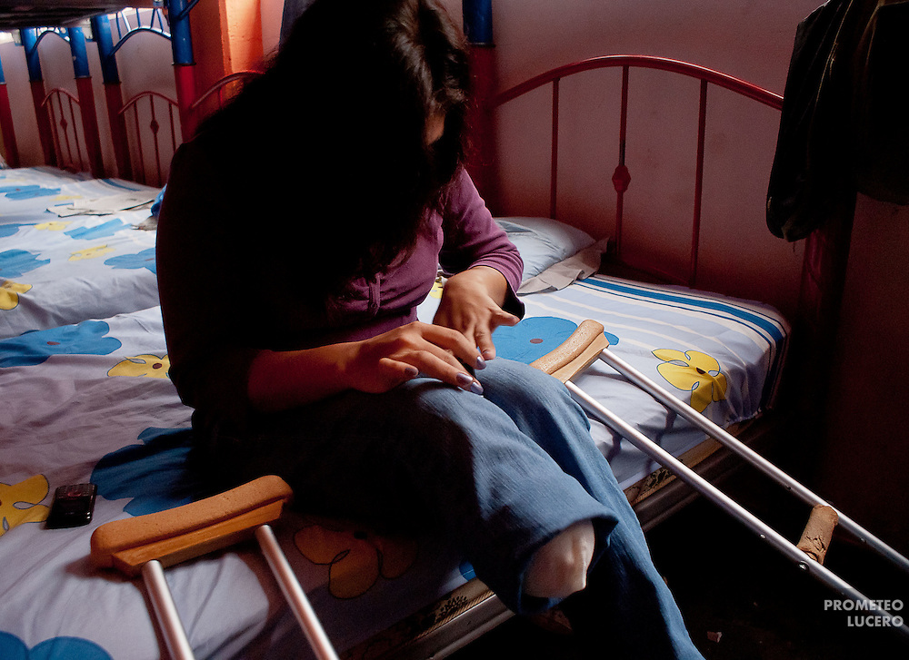 """Yill"", a Honduran migrant woman, 28, lost her right leg after falling down from the train in Huehuetoca, at the north of Estado de Mexico in this photo taken in August 2010. After being rescued by volunteers, she stayed some time  in the migrants shelter ""San Juan Diego Cuauhtlatoatzin"" in Lechería. (Photo: Prometeo Lucero)"