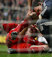 Photo: Paul Thomas.<br /> Liverpool v Sheffield United. The Barclays Premiership. 24/02/2007.<br /> <br /> Liverpool striker Peter Crouch recieves treatment for a cut face, which he won a penalty for to lead towards the first goal.