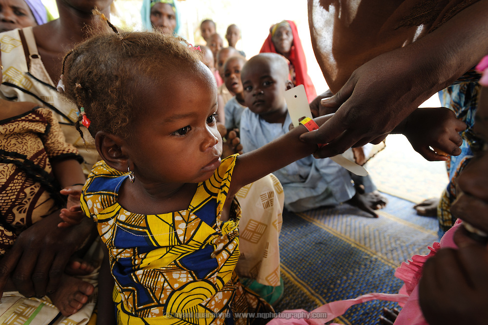 A child is screened for malnutrition using a Mid Upper-Arm Circumference (MUAC) measurement at a Save the Children therapeutic feeding centre in the village of Koona in the Tessaoua region of Niger.