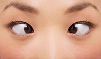 Cross-eyed woman close-up