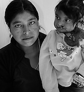 A mother holds her 4 year-old deaf and blind child awaiting cleft palate repair.