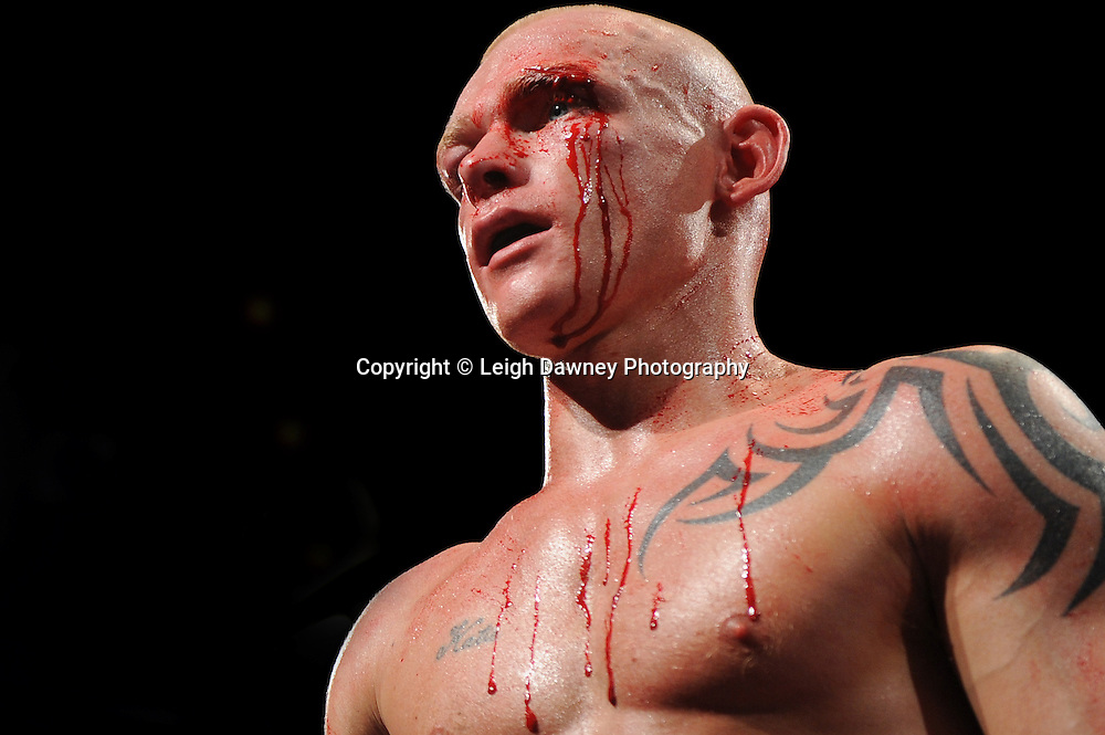 Craig Lyon (pictured) v Josh Wale. Fight stopped after both boxers have cuts above the left eyes following an accidental clash of heads. Premier Suite, Reebok Stadium, Bolton on Saturday 26th February 2011. Hatton Promotions. Photo credit © Leigh Dawney.