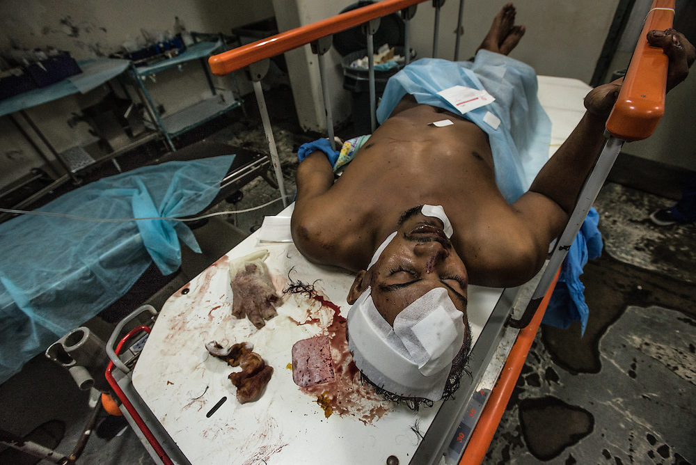 PUERTO LA CRUZ, VENEZUELA - APRIL 16, 2016:  A patient with head trauma from a car accident waits in the emergency operating room of Hospital Universitario Dr. Luís Razetti.  Doctors put bandages on the large, gaping wounds on his head, then sent him away -- they told him they could not do more for him, because the hospital doesn't have the equipment to scan his head, an important requirement to know more about his injury.   There were no ambulances available, so the patient's family had to arrange for a private ambulance to take him to a private clinic - an expensive option that is out of reach for many Venezuelan families.  Hospital Razetti (as it is called for short) is one of the worst state-run, public hospitals in Venezuela.  Doctors compare it to working in a war zone - they regularly have to turn patients away, because they don't have the majority of medicines  or medical equipment and supplies needed to give them medical attention.  When they do accept patients, they have to work with extremely limited resources, because they don't have the supplies they need for things like X-Rays,  and many exams nd operations.  The hospital's infrastructure is crumbling, and staff don't have all the cleaning supplies required to keep the hospital sanitary. The hospital also suffers from weekly shortages of running water and electricity.  In April, several babies died when a power outage turned off the incubators, and the hospital's generator failed to work because of lack of maintenance.  The same month, authorities found over 100 pieces of medical equipment, stolen from the hospital in the home of the assistant to the hospital's director.  Despite having the largest oil reserves in the world, falling oil prices and wide-spread government corruption have pushed Venezuela into an economic crisis, with the highest inflation in the world and chronic shortages of food and medical supplies.  PHOTO: Meridith Kohut