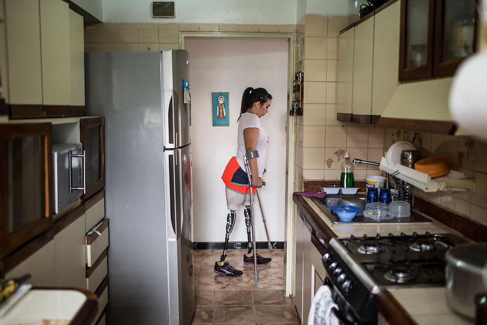 Zarevitz Camacho de 28 años camina con sus muletas y prótesis en su apartamento ubicado en Caracas. 08 de mayo de 2014. (Foto/Ivan Gonzalez)