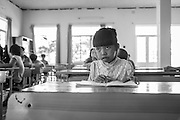 A girl with sight problems, believed to be attributed to Dioxin poisoning at a day center for affected children in Danang, Vietnam.