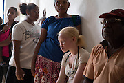The Fred Hollows Foundation NZ outreach in Luganville, on the island of Santo, Vanuatu. August 2014<br /> <br /> Image James Ensing-Trussell/Topic