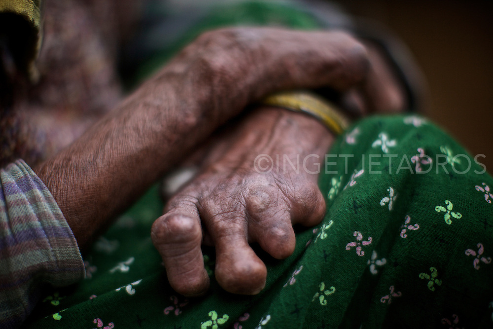 Exclusive at Getty Images.<br /> http://www.gettyimages.com.au/Search/Search.aspx?contractUrl=2&amp;language=en-US&amp;assetType=image&amp;p=ingetje+tadros Sometimes referred to as, 'The Separating Sickness' Leprosy currently affects approximately a quarter of a million people throughout the world, with over 50% of these cases occurring in India.