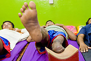 27 JUNE 2006 - SIEM REAP, CAMBODIA: Physical therapy for the victims of landmines and unexploded ordinance at the Handicap International clinic in Siem Reap, Cambodia. Handicap International helps Cambodians maimed by mines and unexploded ordinance as well as traffic accidents and disease adjust to a life without limbs. Cambodians are still wrestling with the legacy of the war in Vietnam and subsequent civil wars. At one time it was the most heavily mined country in the world and a vast swath of Cambodia, along the Thai-Cambodian border, is still mined. In 2004, more than 800 people were killed by mines and unexploded ordinance still found in the countryside.  Photo by Jack Kurtz