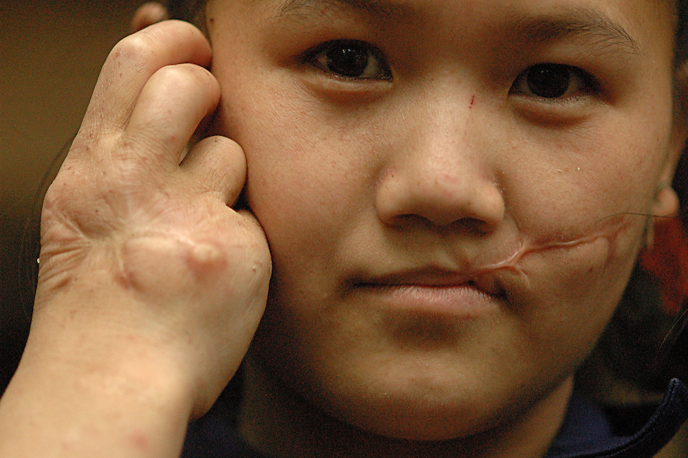 Ms. Khoua Lee, only a teenager, shows her injuries, near Vang Vieng, Laos, July 3, 2006.  She told me her story of being ambushed by Laos Government soldiers on July 15, 2003.  She says they shot her in the face and hand before she was able to escape.  Tears trickled down her face over the scare that reached from her mouth almost to her ear...**EXCLUSIVE, no tabloids without permission**  .Pictured are a group of Hmong people who report an attack against them April 6, 2006 by Lao and Vietnamese military forces.  26 people perished, 5 were injured, and 5 babies died shortly after because their dead mothers could not breast-feed them.  Only one adult male was killed, the other 25 victims were women and children (17 children).  The Lao Spokesman for the Ministry of Foreign Affairs says this is a fabrication, an investigation has been completed, and there was no attack.  The Hmong group says no officials have interviewed witnesses or visited the crime scene, a point the Lao Spokesman did not deny.  ..The Hmong people pictured have hidden in remote mountains of Laos for more than 30 years, afraid to come out.  At least 12,000 are said to exist, with little food, scavenging in the jungle. Most have not seen the modern world.  Since 1975, under the communists, thousands of reports evidence the Hmong have suffered frequent persecution, torture, mass executions, imprisonment, and possible chemical weapons attacks.  Reports of these atrocities continue to this day.  The Lao Government generally denies the jungle people exist or that any of this is happening.  The Hmong group leader, Blia Shoua Her, says they are not part of the Hmong resistance and want peace.  He claims they are just civilians defending their families, hoping to surrender to the UN..