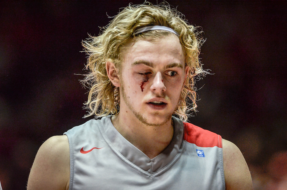 Lobo guard Hugh Greenwood walks off the court after being hit in the eye while trying to score under the basket against San Jose State Saturday afternoon in the Pit. Lobos defeated San Jose State 72 to 47. (Roberto E. Rosales/Albuquerque Journal)<br />
