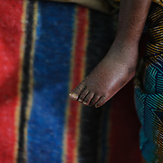 Two year-old Moussa Abdul Karim's feet are seen at the Save the Children stabilisation centre in Matamey in the Zinder Region of Niger. The swelling is the result of edema caused by nutritional deficiencies.