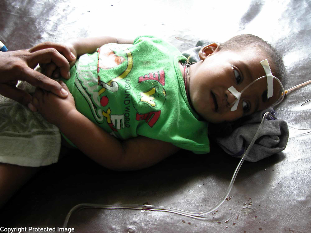 Rahul Amin (10 months old baby) is suffering of pneumonia and hospitalized at Dhubri Civil Hospital, about 298 kilometres, southwest of Gauhati, capital of northeastern Indian state of Assam, Tuesday, July 15, 2003 after devastated flood hit the region and the water-borne diseases (like gastroenteritis, pneumonia, dysentery, jaundice and typhoid hit the flood-affected areas) and malaria, took more than 75 lives, officials of  the flood control, government of Assam (India) said. (AP Photo/Shib Shankar Chatterjee)