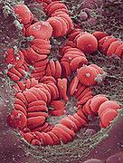 Colored scanning electron micrograph (SEM) of clotting red blood cells from a 18 year old male's wisdom tooth tissue.  The red blood cells are starting to clot in this image.  Magnification: x2330 when printed 10cm wide.