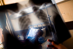 Doctors look at a chest X-Ray of a man suspected of having tuberculosis at the Chris Hani Baragwanath Hospital in Johannesburg.  In this part of the hospital TB patients are not isolated from other patients, increasing the risk of passing the disease. South African Gold miners are particularly vulnerable to contracting TB because of the small, poorly ventilated work and living conditions, high rates of HIV and high rates of silicosis, a lung disease often found in miners that increases the chance of having active TB.