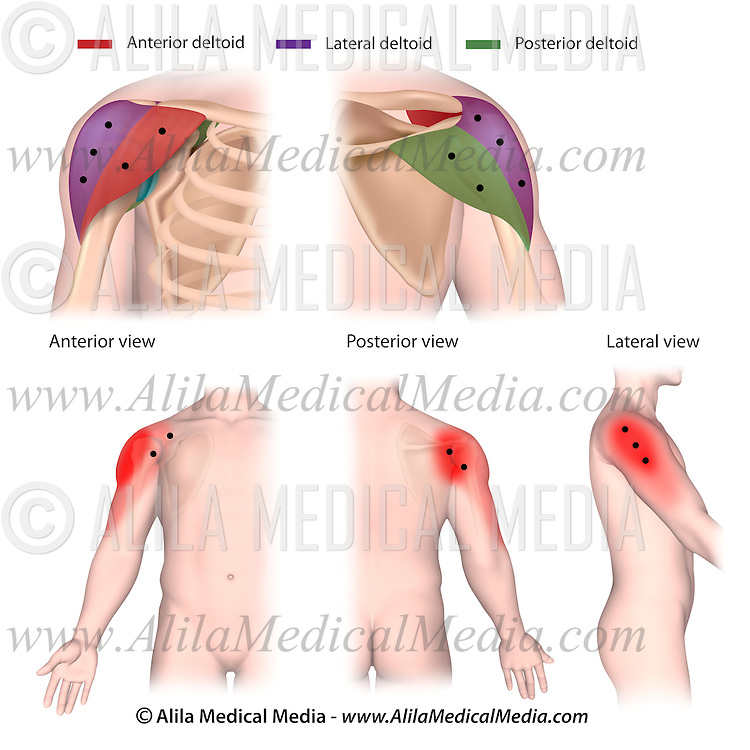 Trigger points and referred pain patterns of the deltoid | Alila ...