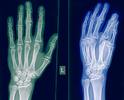X-ray of a healthy hand and wrist of a 40 year old male