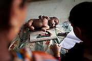 Medical staff is checking the weight of a malnourished child admitted to a feeding centre run by UNICEF in the town Shivpuri, Madhya Pradesh, India.
