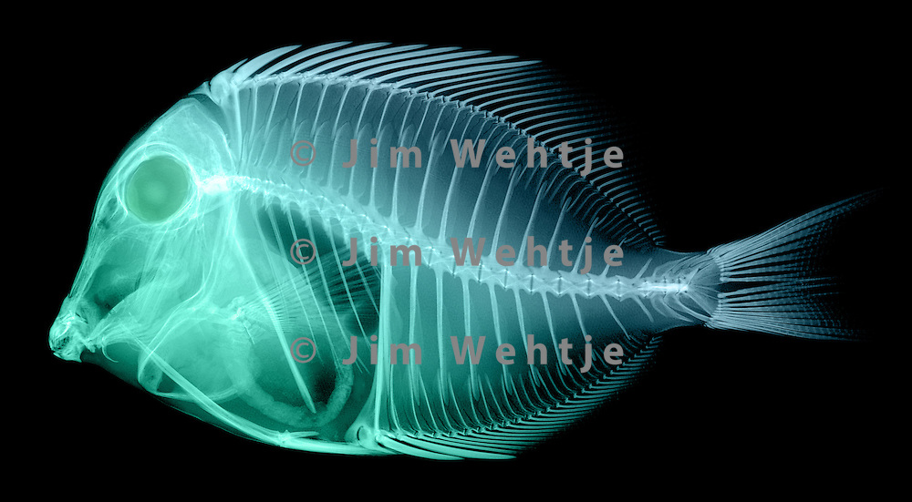 X-ray image of a powder blue tang fish (green on black) by Jim Wehtje, specialist in x-ray art and design images.