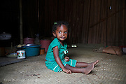 Photo Shows: <br /> Youngest Daughter: Arimalala Nambina, 2 years old, Unilateral Cleft lip, Before.<br /> <br /> Photographed at home 3 hours walk from the nearest hospital at Anivorano Est where their parents can find information about  Operation Smile and find transport to the mission in Tamatave.  They were aware of Operation Smile&rsquo;s 2013 mission to Antananarivo but did not have the money to get there. They have never been to Tamatave where Operation Smile&rsquo;s 2014 mission will take place. The distance from their home to Tamatave is approximately 155 miles and the journey will take them 8 hours.<br /> <br /> Vaviroa (6) has never been to school because her parents worry that the other children will tease her. They live in a small hamlet accessible by single path over rough terrain. The nearest village is Ambodijania. Mother and Father work as subsistence farmers, mainly growing rice. Occasionally the father Dest works in a neighbour&rsquo;s field for which he earns 3000 ariarys ($1.20) per day. <br /> <br /> North East of Anivorana Est, Near Brickaville. Madagascar. <br /> 29h August 2014. <br /> <br /> (Operation Smile Photo - Zute Lightfoot)