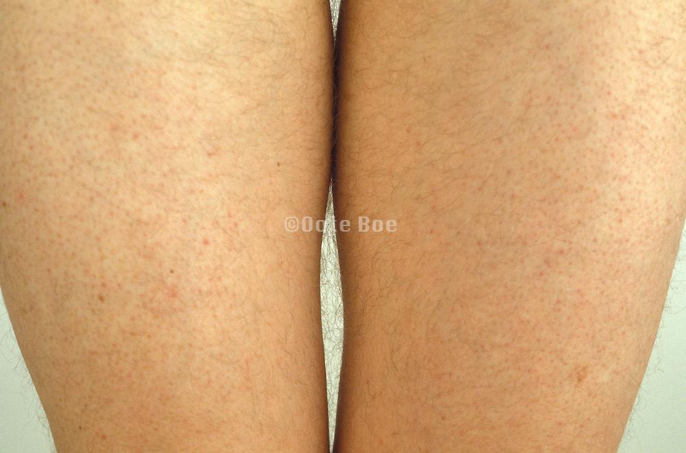 upper part of legs of a man