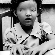 Hanoi, Vietnam 1991.Phuong, born without eyes, learns to read braille. It's presumed her mother was poisoned by Dioxin (Agent Orange) left in the ecosystem after the Vietnam war.
