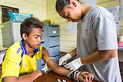 21 MAY 2013 - MAE KU, TAK, THAILAND:  A Burmese health worker draws from a patient known to have malaria at the Mawker Thai SMRU clinic in Mae Ku, Thailand. Health professionals are seeing increasing evidence of malaria resistant to artemisinin coming out of the jungles of Southeast Asia. Artemisinin has been the first choice for battling malaria in Southeast Asia for 20 years. In recent years though,  health care workers in Cambodia and Myanmar (Burma) are seeing signs that the malaria parasite is becoming resistant to artemisinin. Scientists who study malaria are concerned that history could repeat itself because chloroquine, an effective malaria treatment until the 1990s, first lost its effectiveness in Cambodia and Burma before spreading to Africa, which led to a spike in deaths there. Doctors at the Shaklo Malaria Research Unit (SMRU), which studies malaria along the Thai Burma border, are worried that artemisinin resistance is growing at a rapid pace. Dr. Aung Pyae Phyo, a Burmese physician at a SMRU clinic just a few meters from the Burmese border, said that in 2009, 90 percent of patients were cured with artemisinin, but in 2010, it dropped to about 70 percent and is now between 55 and 60 percent. He said the concern is that as it becomes more difficult to clear the parasite from a patient, progress that has been made in combating malaria will be lost and the disease could make a comeback in Southeast Asia.  PHOTO BY JACK KURTZ