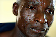 Benin, Natitingou March 01, 2006 - Man with tribal scarification on his face. Scarification is used as a form of initiation into adulthood, beauty and a sign of a village, tribe, and clan.