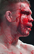LAS VEGAS, NV - JULY 07:  Blood drips down Paul Felder's face as he stands in the octagon during his welterweight fight against Mike Perry at T-Mobile Arena on July 7, 2018 in Las Vegas, Nevada. Perry won by split decision.  (Photo by Sam Wasson/Getty Images)