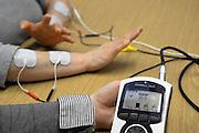 Nederland, Nijmegen, 21-1-2009Met een klein apparaatje worden stroomstootjes gezet op de arm van een patient die een beroerte heeft gehad. Hiermee probeert de arts de spieren en hersenen te stimuleren de functie zelf over te nemen. Het is een onderzoek wat samen met andere acadedemische ziekenhuizen wordt uitgevoerd om een methode te vinden die herstel na een herseninfarct versnellen kan.Foto: Flip Franssen