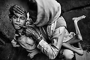 Samir, 14, a severely disabled boy, is having his teeth brushed by his mother, Wahida Bee, 32, a '1984 Gas Survivor', using her finger, while inside their home in Kasi Camp, one of the water-affected colonies near the abandoned Union Carbide (now DOW Chemical) industrial complex in Bhopal, Madhya Pradesh, central India.