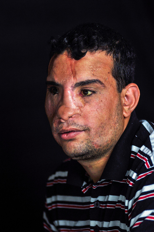 Qusay Saleh Hussein, 23 years old, from Mosul, lost his sight and received severe damage to his head in 2006 while playing volleyball with friends when a suicide car bomb exploded near the neighborhood lot where they were playing. <br /> Amman, Jordan. 02/12/2011.