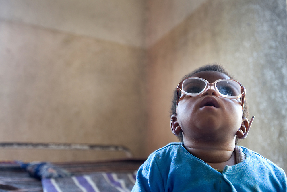Furaha Neema (7 months) who is being treated for eye injuries at the COPH hospital in Goma, DR Congo.