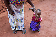 Maria from Malawi suffers from Down syndrome and a heart condition. Her mother Funy is teaching her how to walk.