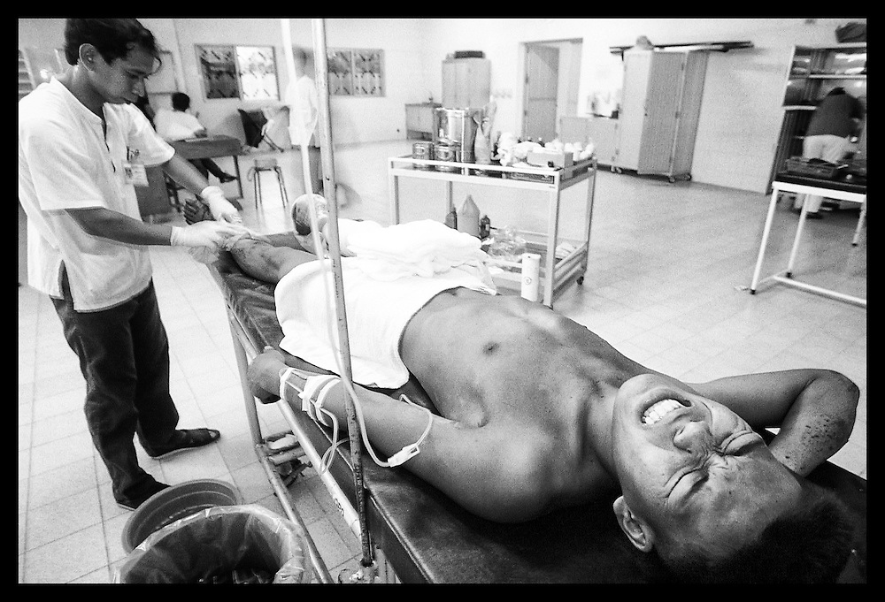 "Nil Sarak grimmaces in pain as he is prepared for surgery Wednesday, March 17, 1999, at the modern trauma facility ""Emergency"" in Battambang, Cambodia.  Sarak was injured by a landmine while attempting to clear land he and his family recently settled in Bavil provience, 100 kilometers, west of Battambang."