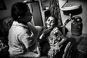 Sharma Khan, 31, a '1984 Gas Survivor', is applying some talco on the face and neck of her disabled daughter Sufiya, 7, a girl affected by severe cerebral palsy, while in their home in Shajahanbad, Bhopal, Madhya Pradesh, central India.