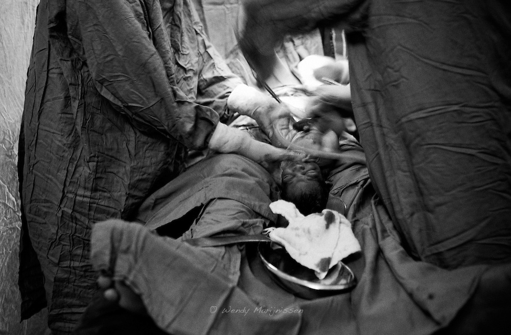 The baby being taken out of the belly and delivered safely. Thari Mirwah, Pakistan, 2010