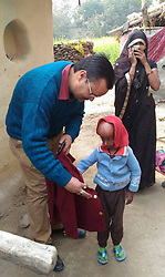 April 26, 2017 - UTTAR PRADESH, INDIA - UTTAR PRADESH, INDIA - 2017 : Dr Girish Pandey (left) and helping Rupesh, 21, to put his coat on, at his residence in Dharecha village of Hanumanganj district in Uttar Prdesh, India.....Rupesh, 21, suffers from a rare Hutchison Gilford Progeria Syndrome (a rare genetic condition that causes a child's body to age fast). His body started showing abnormal changes as he grew older. His head became bigger while his body shrivelled. At just 21, Rupesh he looks like an old man.....Pictures supplied by : Cover Asia Press (Credit Image: © Cover Asia Press/Cover Asia via ZUMA Press)