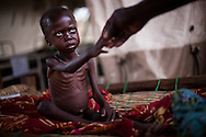 A child suffering form severe malnutrition in a feeding center at the Yida refugee camp on the border of South Sudan.