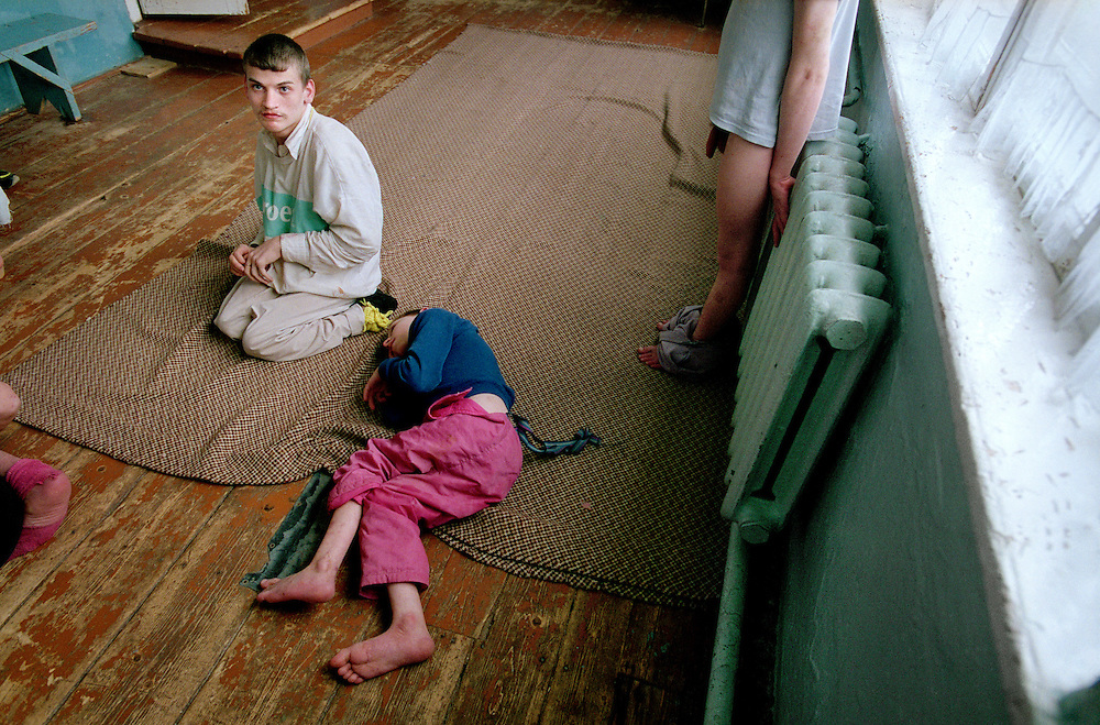 ©UKRAINE 2001. Orphanage in a rural area where many children, born around the time of the Chernobyl accident, show signes of radiation linked diseases..Picture featured in book KIDS photos by Markus Marcetic, published 2007.