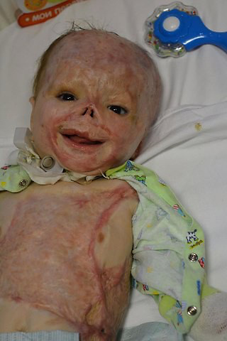 "Baby who suffered 75% burns goes on first holiday to celebrate birthday<br /> <br /> A brave toddler abandoned by his mother after he suffered horrific 75 per cent burns now splashes on the beach -  for his first ever holiday.<br /> <br /> Matveiko Zakharenko - or Matthew - was being treated for jaundice when the bungling nurse left the room with a nappy covering the light therapy lamp causing it to explode.<br /> <br /> Matthew suffered severe 75 per cent burns and 15 per cent internal organ burns that left his tiny body wrapped in bandages at the hospital in Tula, Russia, in November 2014.<br /> <br /> Horrified mother Ekaterina Zakharenko, then just 19, gave him up after the accident when she was told he would need decades of skin grafts, surgery and care.<br /> <br /> But after a lengthy legal battle families vying to adopt the brave tot - who even won the heart of president Vladimir Putin - he is now settled in a new home and celebrated his second birthday.<br /> <br /> Heart-warming footage shows Matthew - affectionately knows as Matvey or Matty - laughing as he splashes around with his adopted older brother in a paddling pool filled with sea water.<br /> <br /> His new mother Svetlana, whose full identity and location is protected due to the sensitivity of the case, said she feels like Matthew has always been part of the family.<br /> <br /> She said: ""This was Matveiko's first time swimming in the sea and flying on an airplane. <br /> <br /> ''He made new friends. On vacation we all learned that he was a general favorite. He loves to travel, he enjoys sitting down in a child seat car and looking out the window to watch the landscapes. <br /> <br /> ''We have consulted different specialists and the forecasts give him good health and los of hope for his rehabilitation. All planned operations will begin in the autumn next year. He is the most beautiful, most intelligent boy you could wish for. <br /> <br /> ''My dream is to hear his first word and see his first steps. Thank you all for your support.""<br /> <br /> Matthew was left in severe pain after the horror accident when the ''light therapy'' lamp"