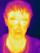 A Thermogram of a boy without glasses.  This image is part of a series.  The different colors represent different temperatures on the object. The lightest colors are the hottest temperatures, while the darker colors represent a cooler temperature.  Thermography uses special cameras that can detect light in the far-infrared range of the electromagnetic spectrum (900?14,000 nanometers or 0.9?14 µm) and creates an  image of the objects temperature..