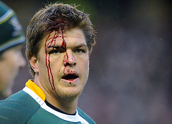 South Africa flanker Juan Smith about to leave the field for medical treatment following a badly cut head..Scotland v South Africa, Murrayfield, Edinburgh, Scotland, Satday 20th November 2010.