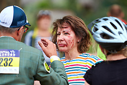 © Licensed to London News Pictures. 01/08/2015. LONDON, UK. A woman receives medical attention after crashing during the 10th Brompton World Championship bike race. The annual event sees over 500 competitors use the folding bicycles to race round St James' Park for up to 8 laps. Photo credit: Cliff Hide/LNP