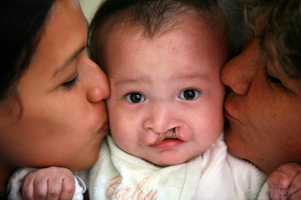 Seven month old Rodrigo Siles of Santa Cruz, gets kisses from his mother, Monica Gucharllo, left, and grandmother, Marta de Siles, right before Rodrigo undergoes surgery with Operation Smile Thursday morning, November 15, 2007, at the Hospital Japones in Santa Cruz, Bolivia during Operation Smile's World Journey of Smiles...Photograph by Erin Lubin..