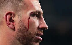 Luke Romano of New Zealand with stitches above his eye - Mandatory by-line: Robbie Stephenson/JMP - 04/11/2017 - RUGBY - Twickenham Stadium - London,  - Barbarians v All Blacks - Killik Cup