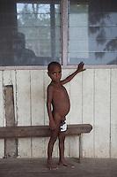 simson outside the wangamalo clinic
