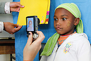 No. 74, Sidonie Haritiana, UCL, unilateral Cleft lip, female, 7 years old,  before, has her photograph taken by the Patient Imaging technicians during the first day of screening.<br /> <br /> Operation Smile South Africa<br /> Operation Smile Mission to Hospital Joseph Ravoanangy Andrianavalona,<br /> Antananarivo, Madagascar. September 17th - 29th 2011<br /> <br /> &copy; Operation Smile Photo / Zute &amp; Demelza Lightfoot<br /> www.lightfootphoto.com
