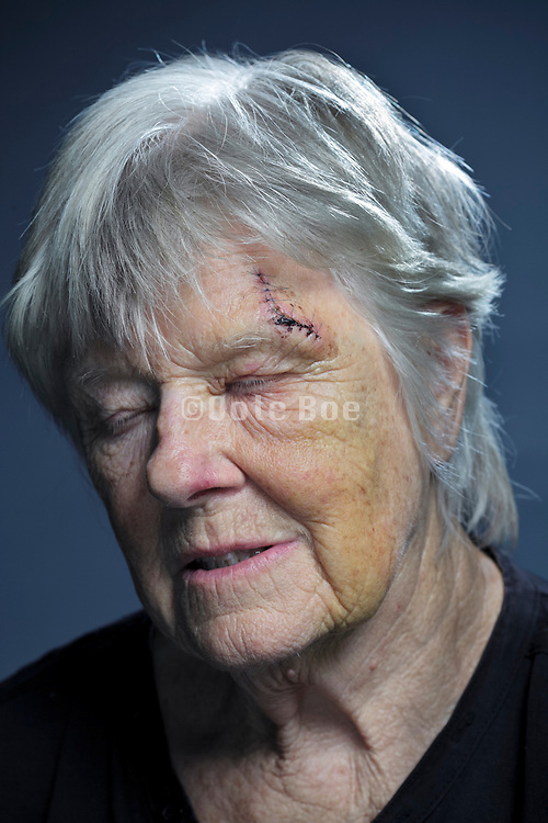 Senior woman with head injury