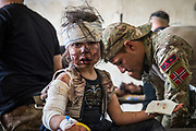 A child receives emergency treatment for head trauma and other injuries at a trauma stabilisation point a kilometre from the frontline after escaping the remaining pocket of ISIS held territory inside the Old City of Mosul on July 2, 2017.