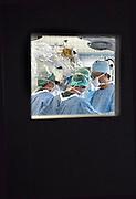 Nederland, Heerlen, 2-7-2010Operatie in operatiekamer, ok, o.k. in Atrium ziekenhuis Heerlen. gezondheidszorg, ok verpleegkundigen,  assistenten, chirurgie, kosten, wachtlijsten, instrumenten, Medisch specialist, ziekte, transplantatie, donor, anesthesieFoto: Flip Franssen